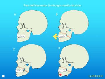 mandibola, chirurgia mandibola, mmo