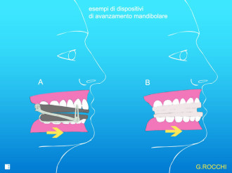 mad, mandibular, dispositivo mandibular